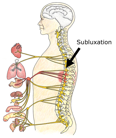 subluxation-large